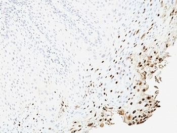 IHC: Formalin-fixed, paraffin-embedded human cervix stained with anti-L1 antibody (SPM257).