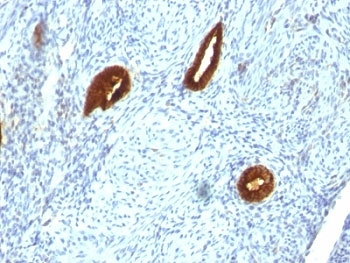 IHC analysis of formalin-fixed, paraffin-embedded human endometrial carcinoma stained with anti-CK19 antibody (clone SPM266).